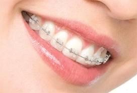 Aparat ortodontic fix ceramic | CENTRUL STOMATOLOGIC ZORILOR - Dr. TUDOR POMANA