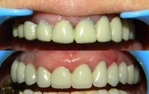 Metaloceramica pe implante | Dr. Ardelean