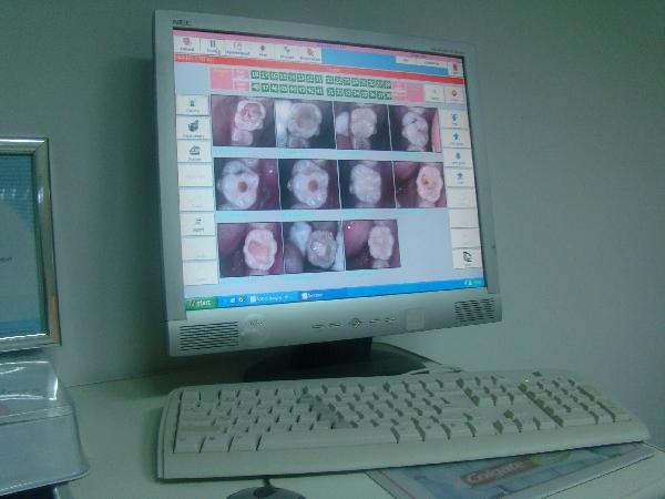 Soft imagini camera intraorala | CABINET DENTAR DR. DUMITRESCU DAN MUGUR